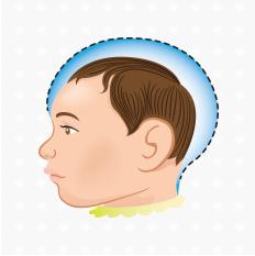 Associação Brasileira de Fisioterapia Neurofuncional – ABRAFIN emite parecer sobre a estimulação precoce e microcefalia