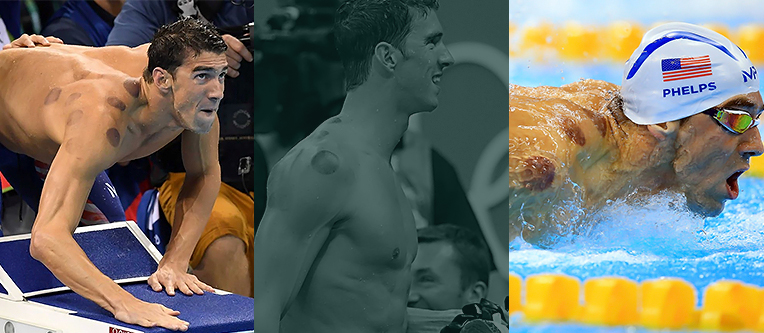 Clinica Cauchioli - Blog - O que sao as manchas no corpo do Phelps