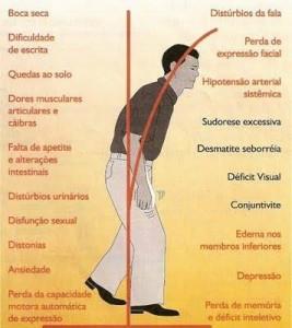 Sintomas-Mal-de-Parkinson