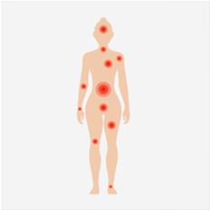 Fibromialgia: Conheça os tratamentos