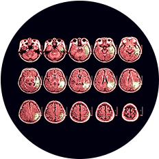 O que é atrofia cerebral?