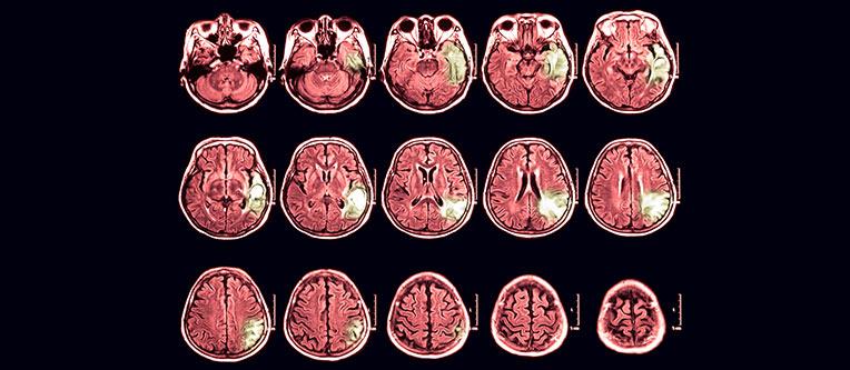 clinica-cauchioli-blog-o-que-eh-atrofia-cerebral